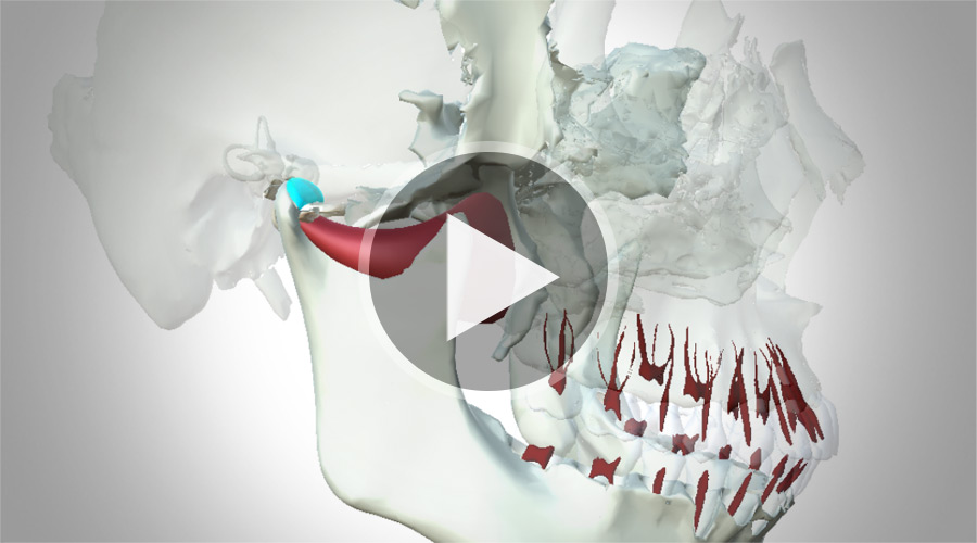 Video: eHuman 3D Dental Education